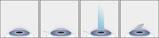LASIK Process
