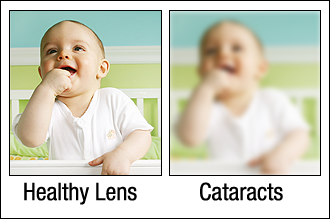 Comparison of vision with and without cataracts