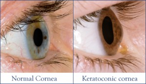 Normal Cornea (left) vs Keratoconic Cornea (right)