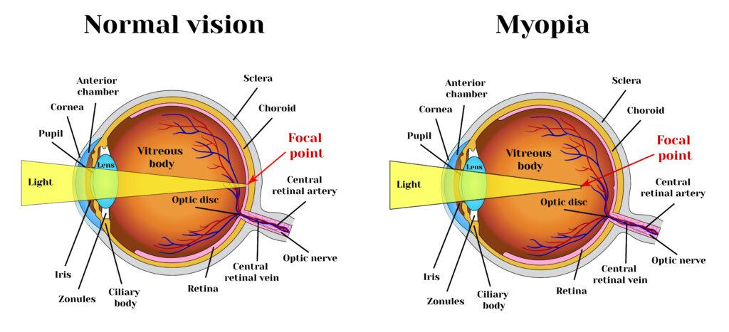 Normal Vision vs Myopia